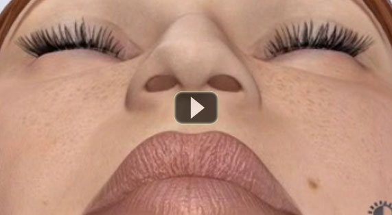 Nose Reshaping Animation Rhinoplasty Surgery. Ocean Clinic Marbella