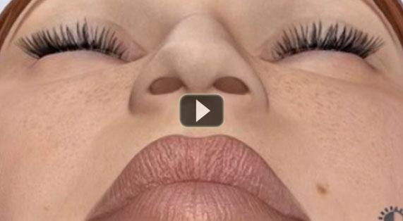 Nose Reshaping Animation Rhinoplasty Surgery. Ocean Clinic Marbella