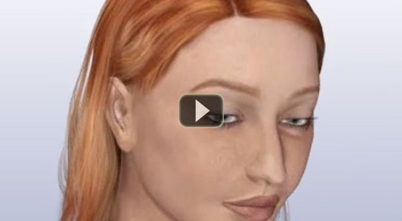 Nose Reshaping Animation Rhinoplasty Implants. Ocean Clinic Marbella