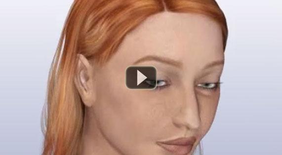Nose Reshaping Animation Rhinoplasty Implants. Ocean Clinic Marbella