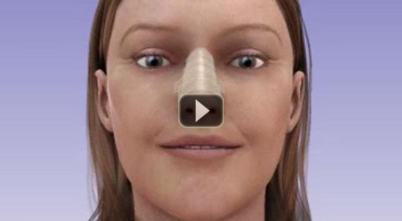 Cirugía de Nariz Animacion Implantes Nasales Marbella Málaga Ocean Clinic