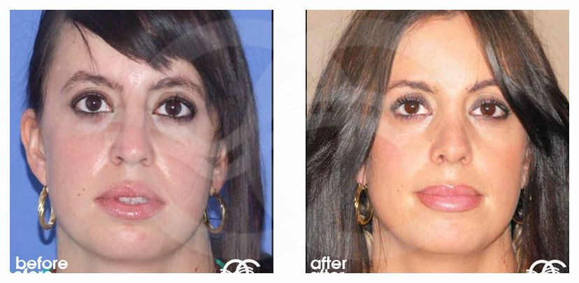 Nose Reshaping Before After Rhinoplasty Bridge and Dorsum Marbella Ocean Clinic