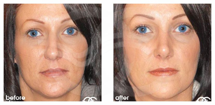 Nose Reshaping Before After Rhinoplasty Hump Removal Marbella Ocean Clinic