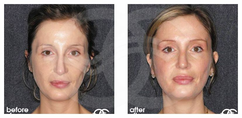 Nose Reshaping Before After Closed Tip Rhinoplasty Marbella Ocean Clinic