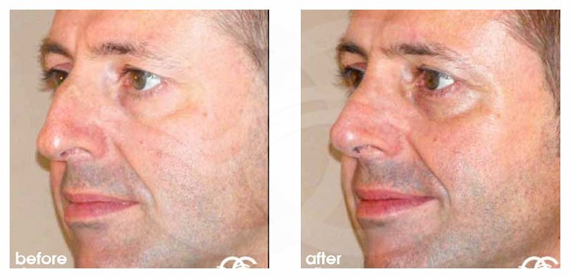 Nose Reshaping Before After Closed Rhinoplasty Marbella Ocean Clinic