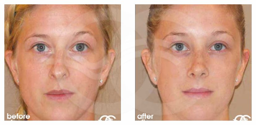 Nose Reshaping Before After Rhinoplasty Nose Job Marbella Ocean Clinic