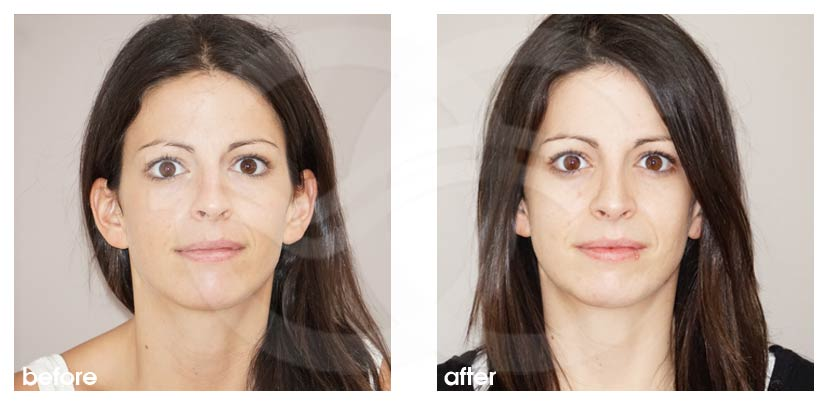 Nose Reshaping Before After Closed Rhinoplasty Tip Delivery Marbella Ocean Clinic