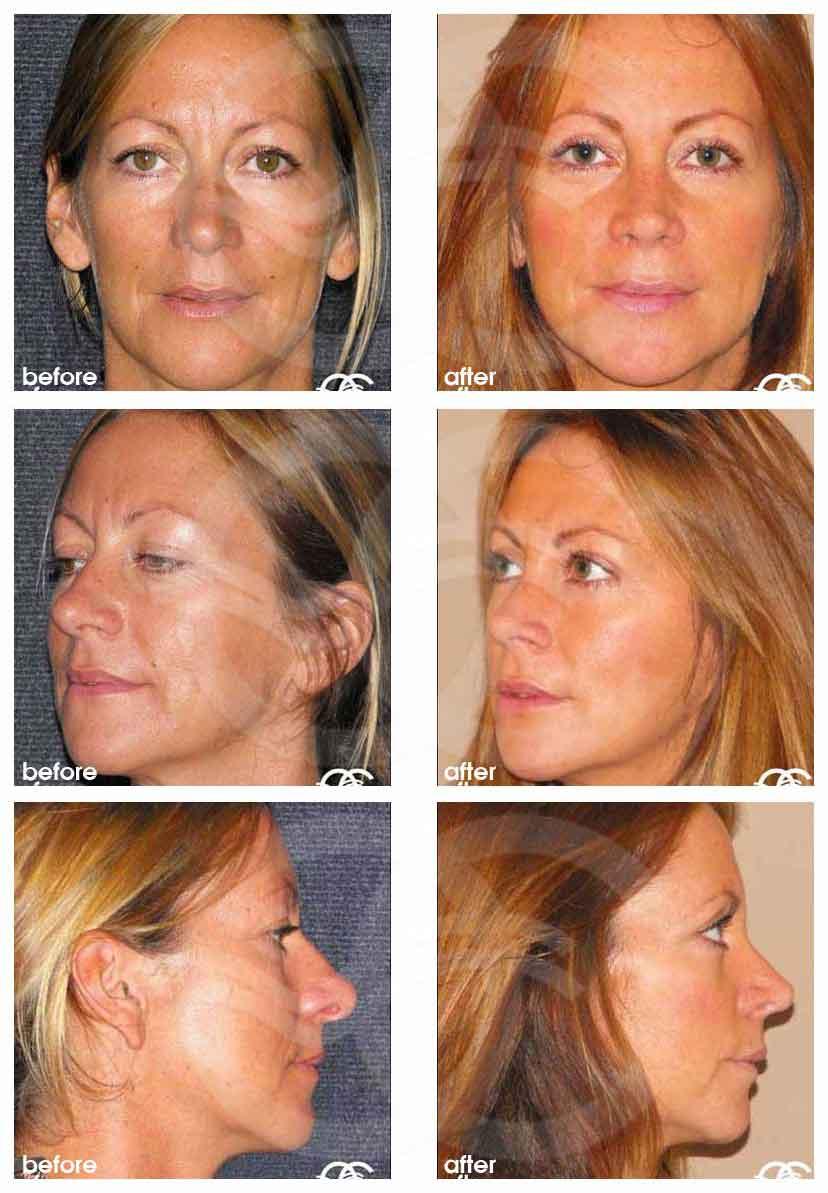 Chirurgie du Nez Ocean Clinic Marbella Espagne