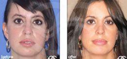 Cirugía de Nariz Antes y Después Foto Ocean Clinic caso 01 Marbella Málaga
