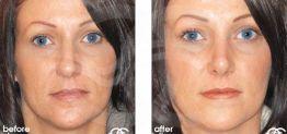 Nasenkorrektur Vorher und Nachher Bilder Fall 02 Ocean Clinic Marbella