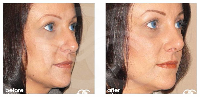 Cirugía de la nariz RINOPLASTIA Y RINOMODELACIÓN before after side