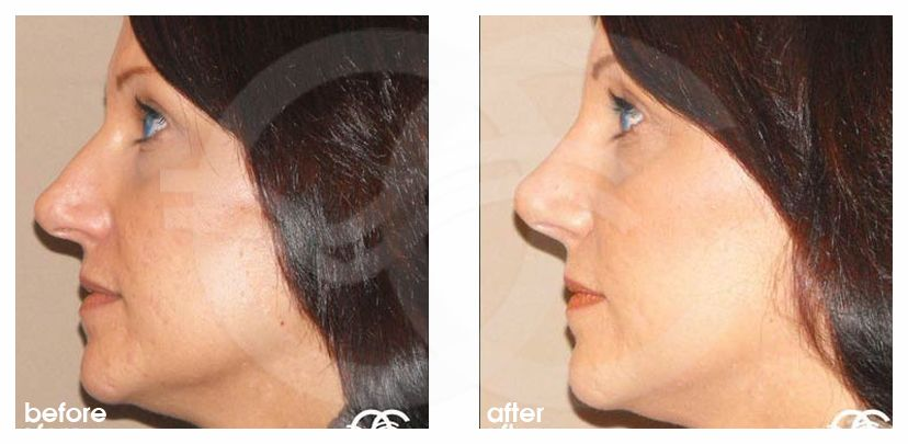 Nose Correction HUMP REMOVAL before after perfil