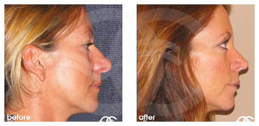 Nose Correction NASAL TIP before after perfil