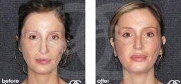Nasenkorrektur Vorher und Nachher Bilder Fall 04 Ocean Clinic Marbella