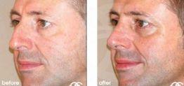Nasenkorrektur Vorher und Nachher Bilder Fall 05 Ocean Clinic Marbella