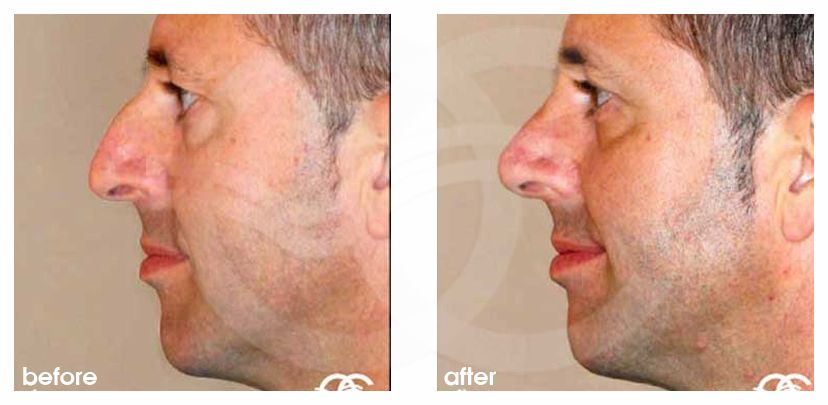 Nose Correction CLOSED RHINOPLASTY before after side
