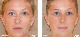 Nasenkorrektur Vorher und Nachher Bilder Fall 06 Ocean Clinic Marbella