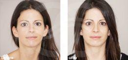 Nasenkorrektur Vorher und Nachher Bilder Fall 07 Ocean Clinic Marbella