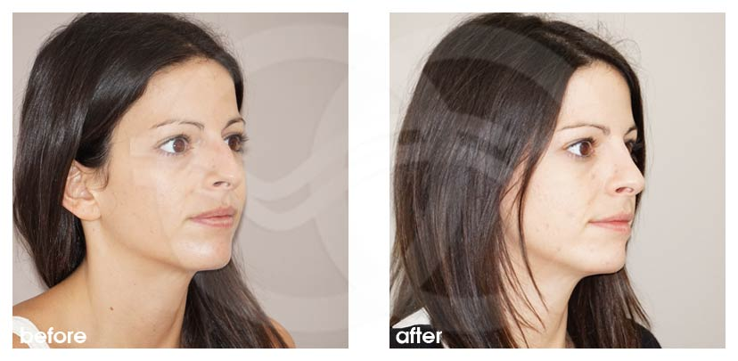 Nose Reshaping Before After Photo Ocean Clinic Marbella Spain