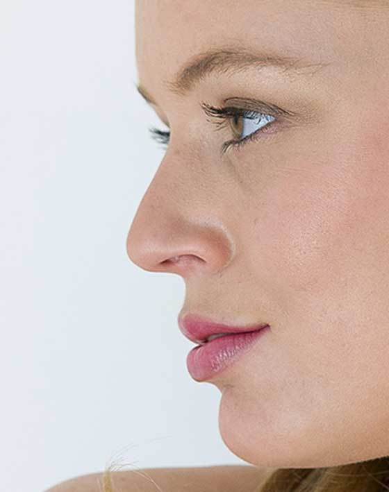 Nose Reshaping Patient Review Closed Rhinoplasty Hump Removal. Marbella Ocean Clinic
