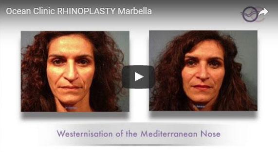 Nose Reshaping Video Rhinoplasty Rhinoplasties in Marbella Ocean Clinic