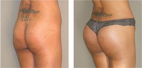 A buttock augmentation gives you a bigger butt