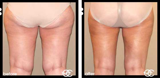 Types of Cellulite mild moderate