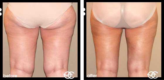 Types of Cellulite mild moderate