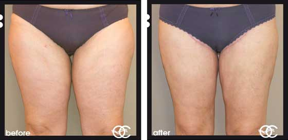 Types of Cellulite severe