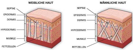 Was verursacht Cellulite?