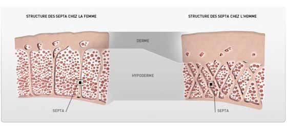 Qué causa la celulitis
