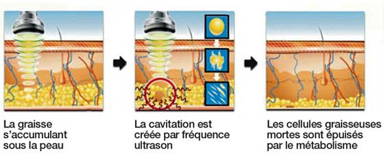 Cavitación ultrasonido