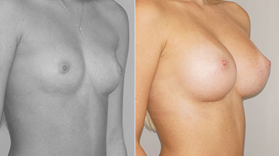 Before & After Actual clinical cases with before and after photographs. Marbella Madrid
