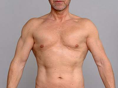 Liposuction plastic surgery for men Marbella and Madrid. Ocean Clinic