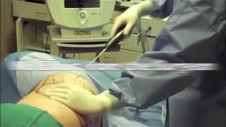 Liposuction Nutational Infrasonic Liposuclpture with the Lipomatic aspirator Marbella Madrid