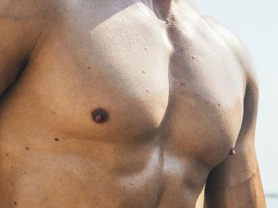 Gynäkomastie Reduktion der männlichen Brust Marbella Madrid