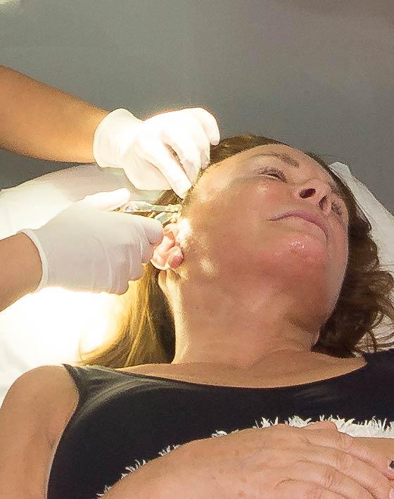 Plasmatherapie Vampir-Lifting Ocean Clinic Marbella Spanien