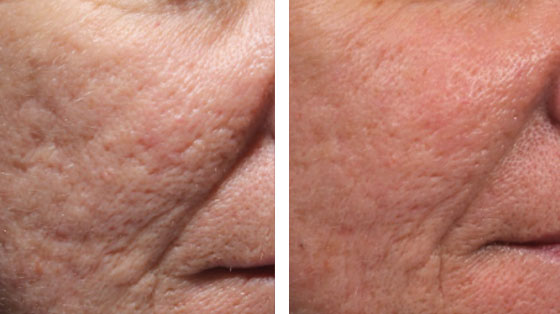 Before and After Platelet Rich Plasma Ocean Clinic Marbella Spain