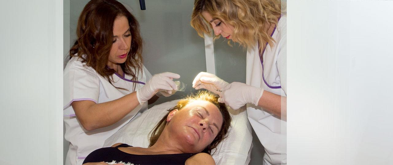 PRP THERAPIE Vorher und Nachher Ocean Clinic Marbella Spanien
