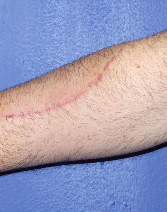 Corrección de Cicatrices Ocean Clinic Marbella Málaga