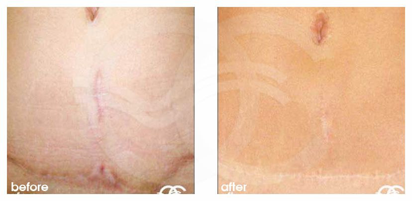 Scar Revision Before After Photo Ocean Clinic Marbella Spain