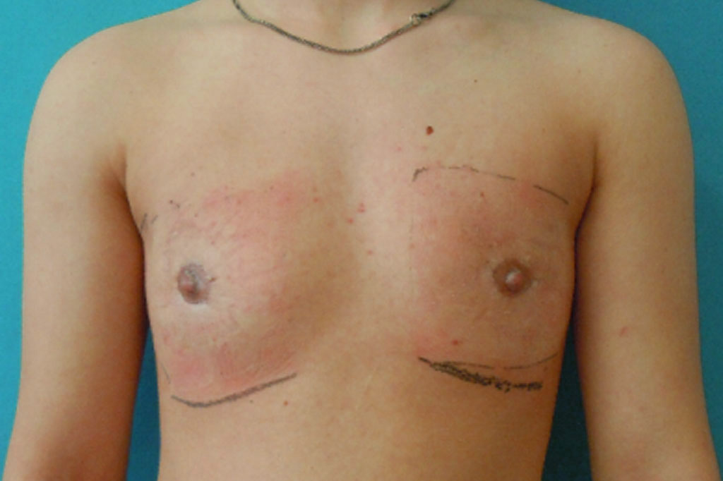 Female to male Mastectomy