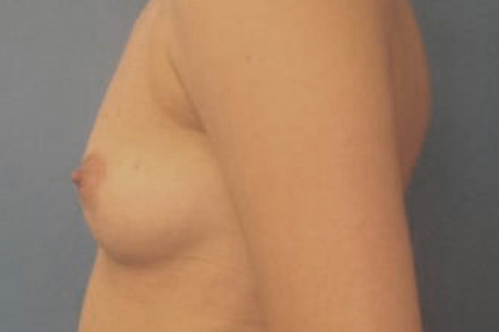 Female to male Mastectomy Before & after photos 03