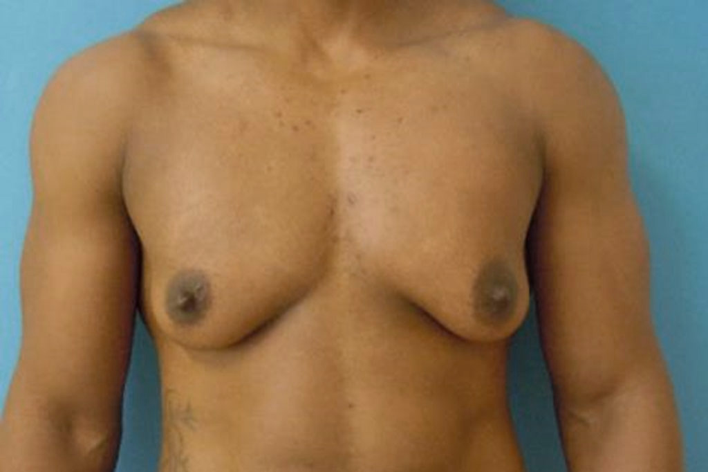 Female to male Mastectomy Before & after photos 01