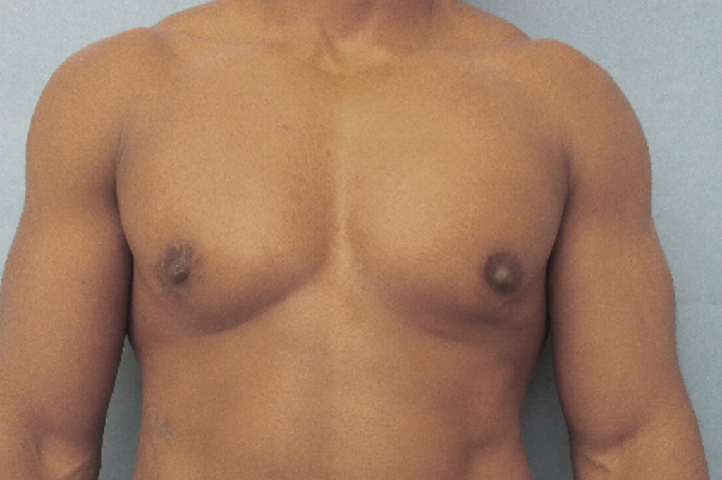 Female to male Mastectomy Before & after photos 02