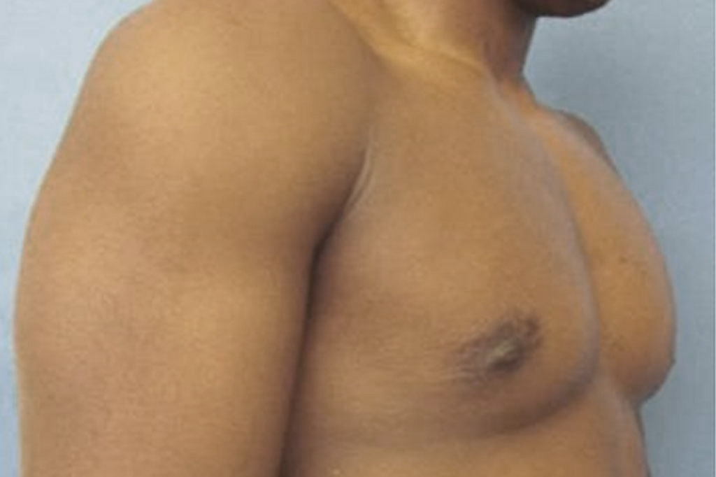 Female to male Mastectomy Before & after photos 04