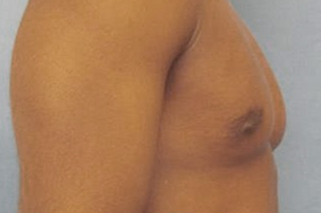 Female to male Mastectomy Before & after photos 06