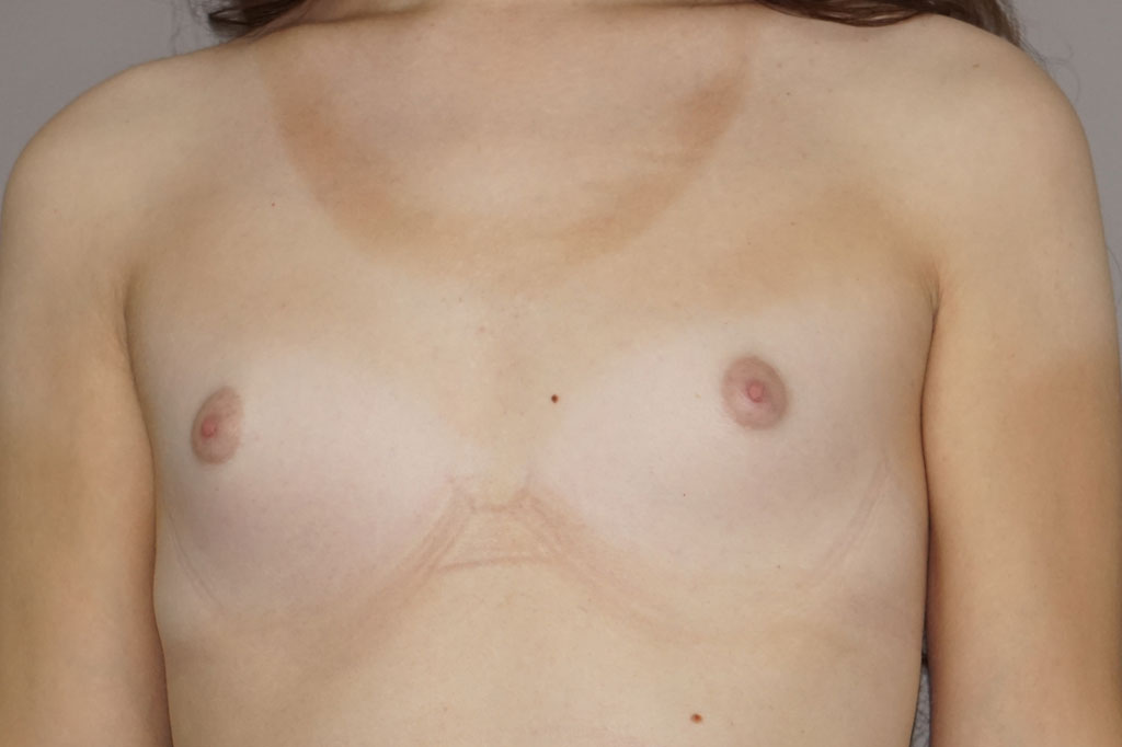 Male to female Breast augmentation case01 Before & after photos 01