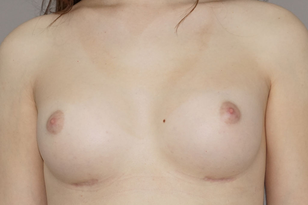 Male to female Breast augmentation case01