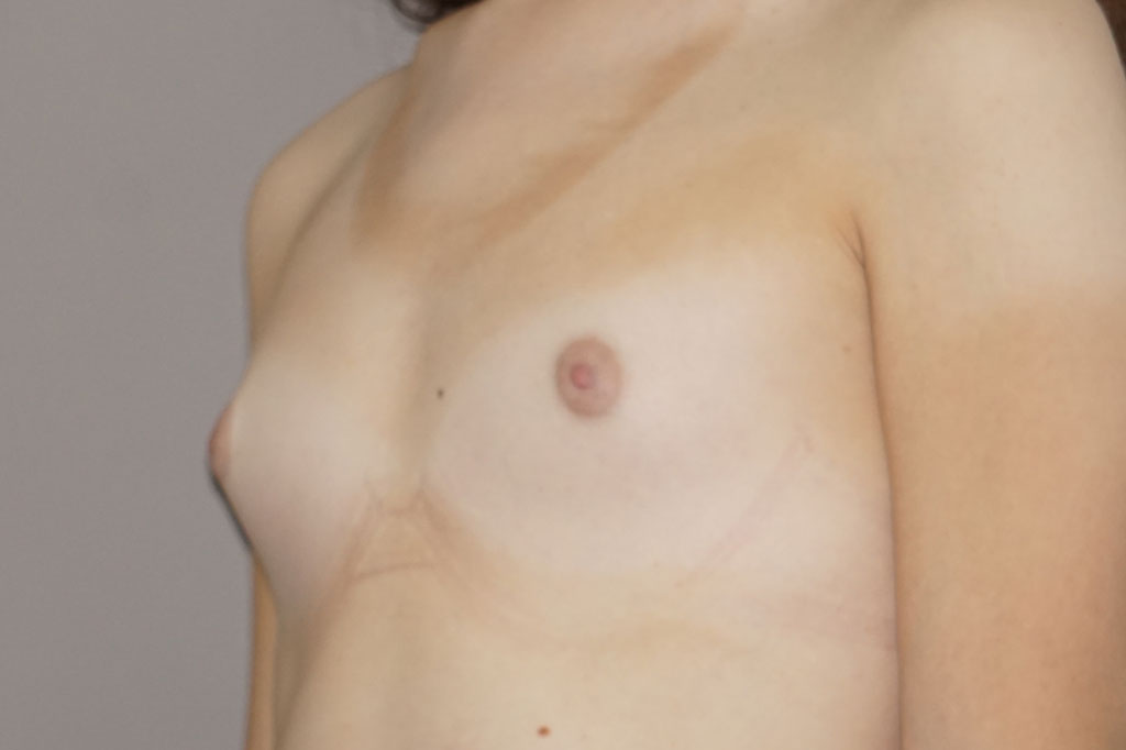 Male to female Breast augmentation case01 Before & after photos 03
